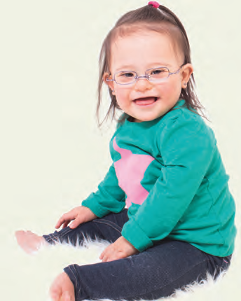 Should bifocal spectacles be prescribed to paediatric patients with Down's Syndrome as routine clinical management?